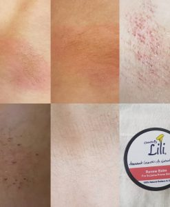 Renew Balm Before/After