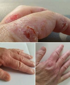 Eczema Before & After