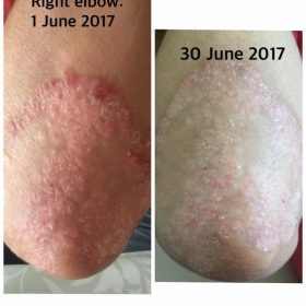Psoriasis Before & After Oasis Balm
