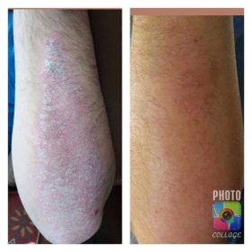 Before Psoriasis/After 1 wk Oasis Balm