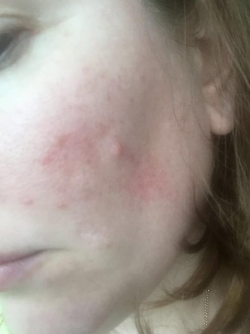 Anguish of Rosacea with Acne
