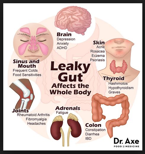 Dr Axe Leaky Gut