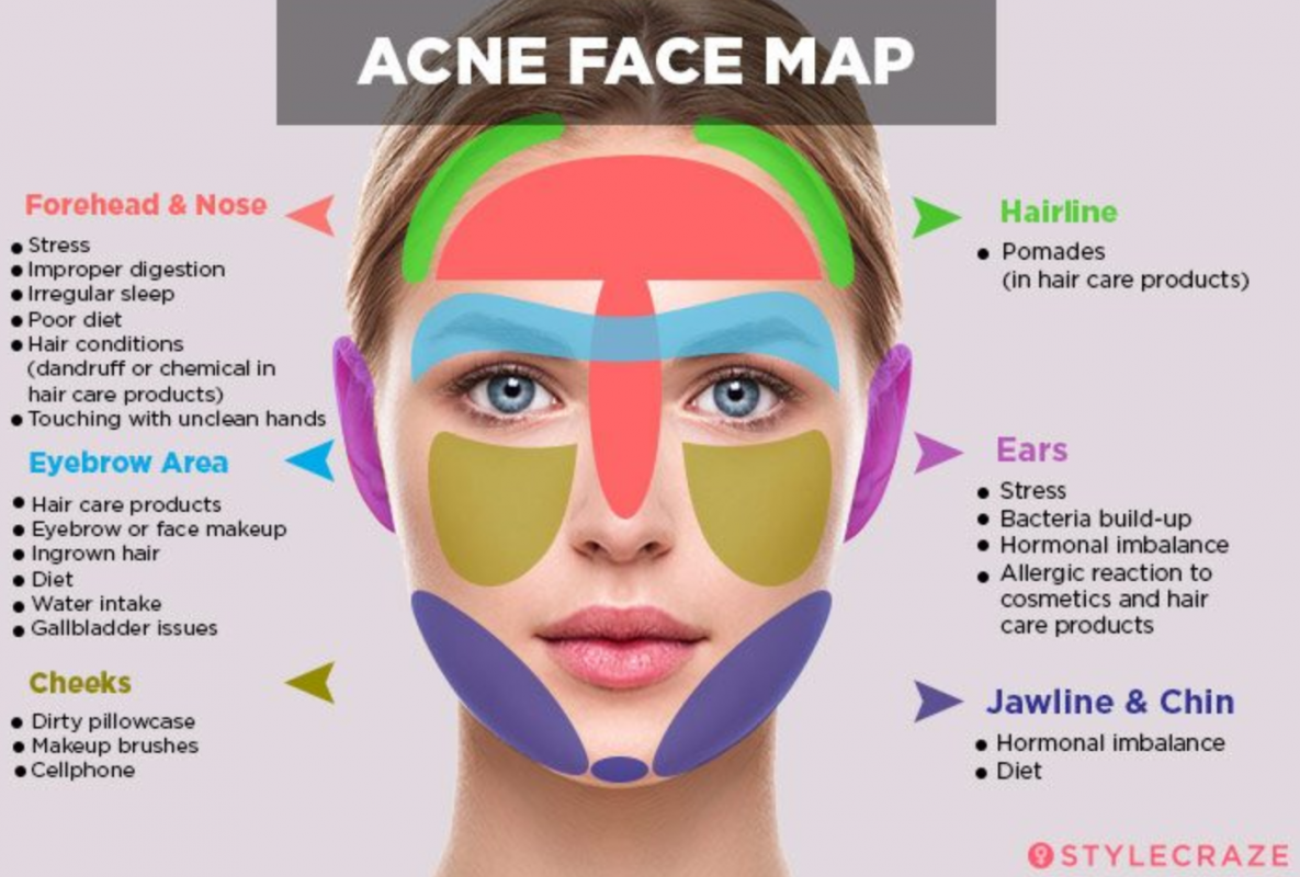 Acne Face Map Dec19