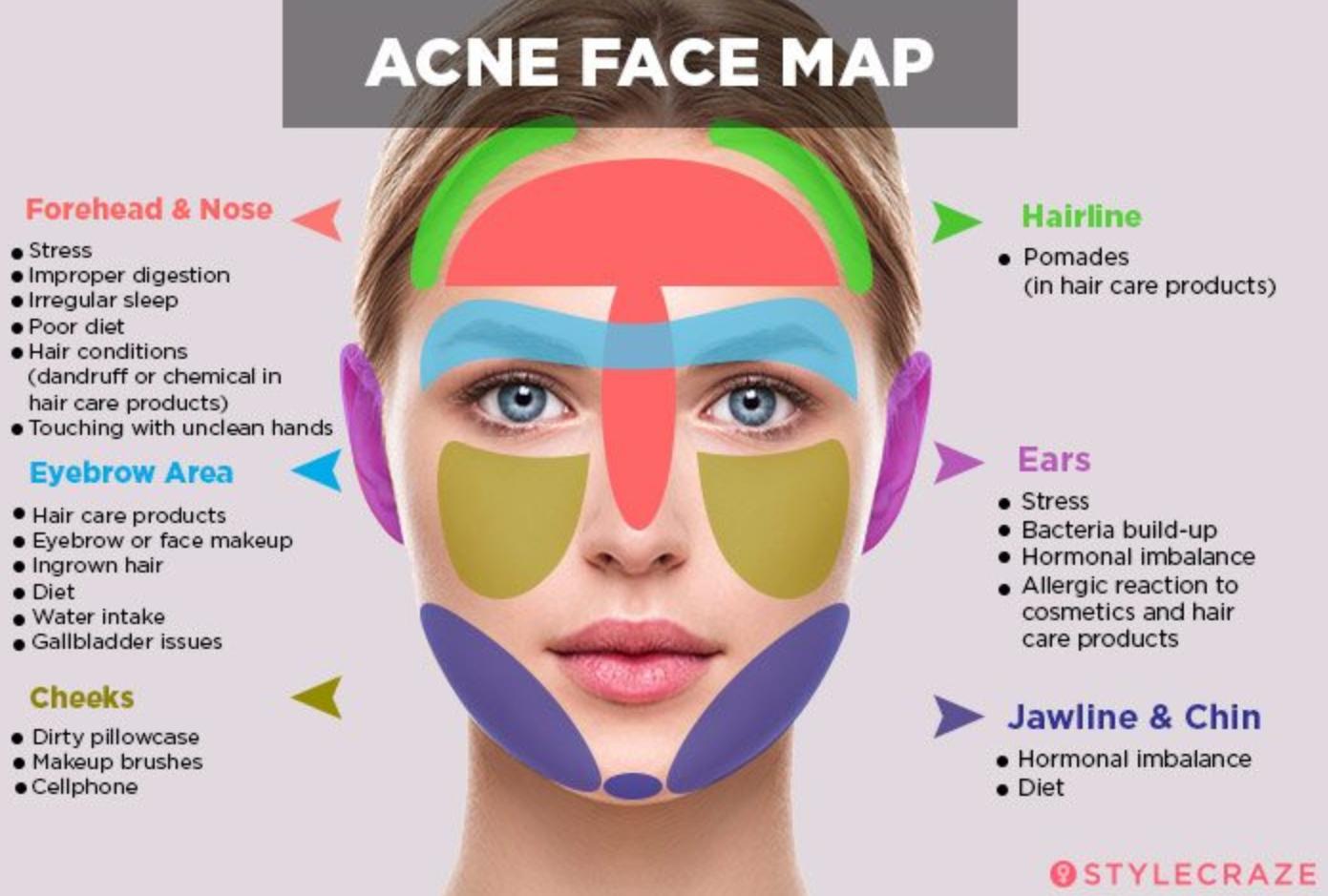 Acne Face Map Dec19