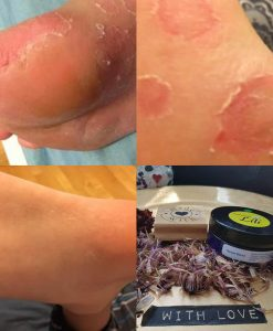 Fungal Infection Before/After Renew Balm