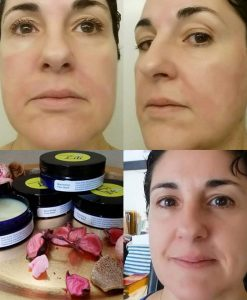 Nourishing Face Balm Before/After burning my face with Apple Cider Vinegar