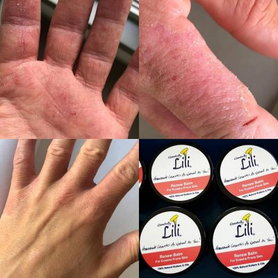 Before & After Renew Balm